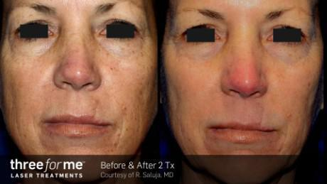 skin tone and texture