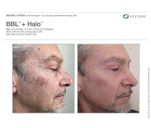 Halo Laser Specialist - Naples, FL: Refined Image: Medical Spa