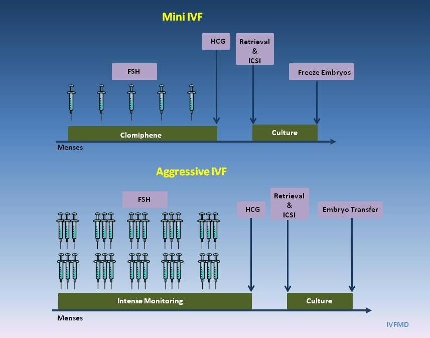 MiniFV