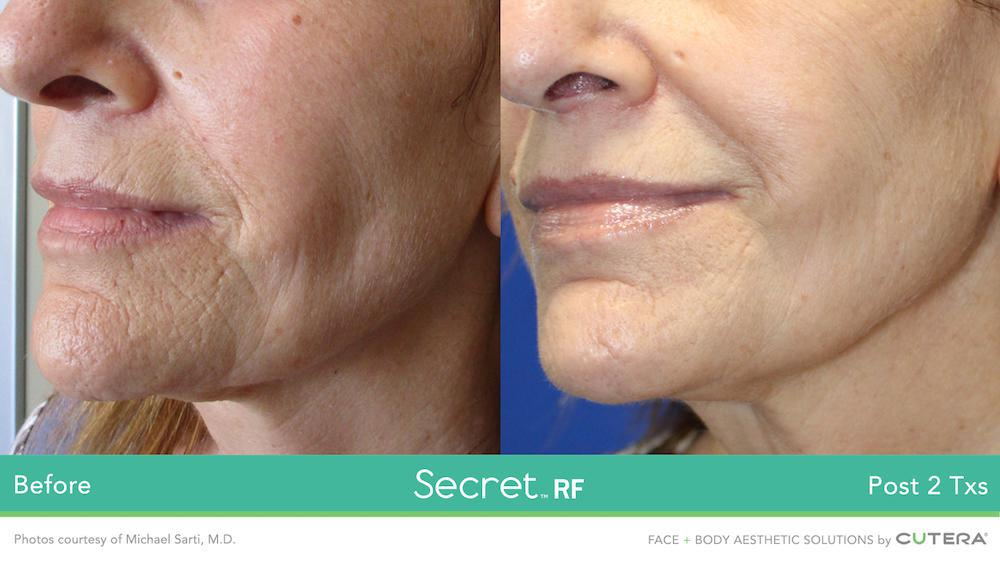 Secret RF Before and After