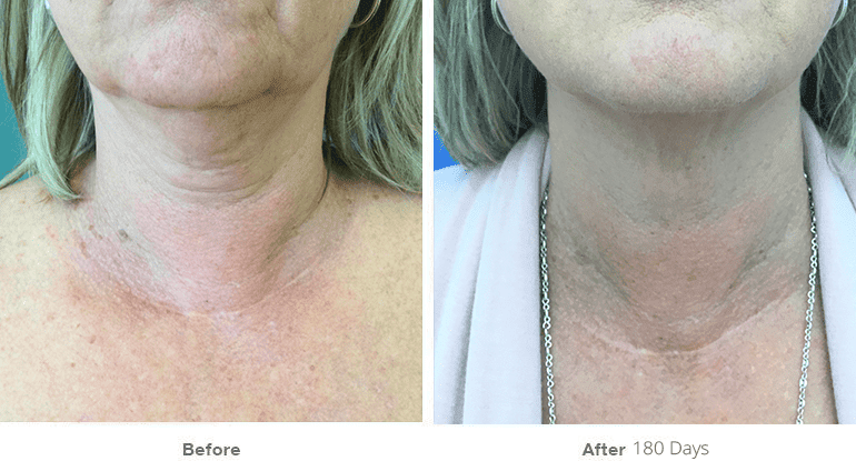 Before After Ultherapy Under Chin