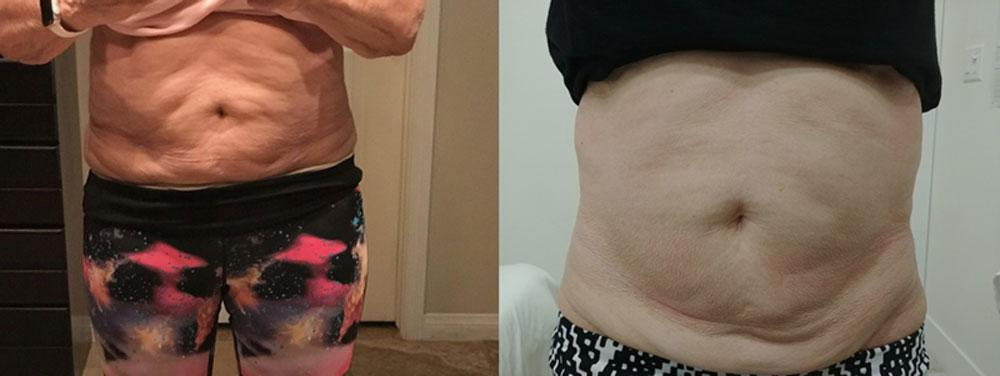 Six sessions, LipoSculpt Lite + Ultrasonic Cavitation + ThermaLift.