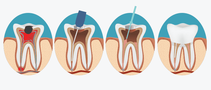 Dentist in the bronx Root Canal Treatment