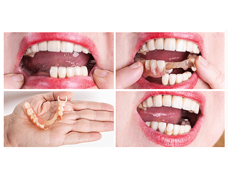 Valplast Denture Dentist