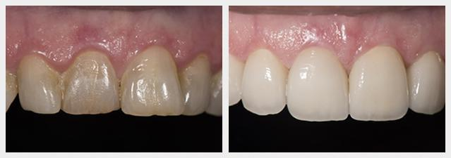 before and after porcelain veneers 1