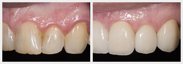 before and after porcelain veneers 2