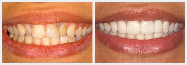 before and after full porcelain crowns
