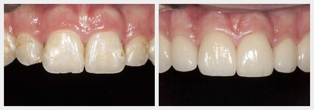 before and after fixing complications from braces