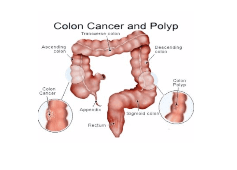 Colon Cancer Screening Shahla Rah Md Facg Gastroenterologist