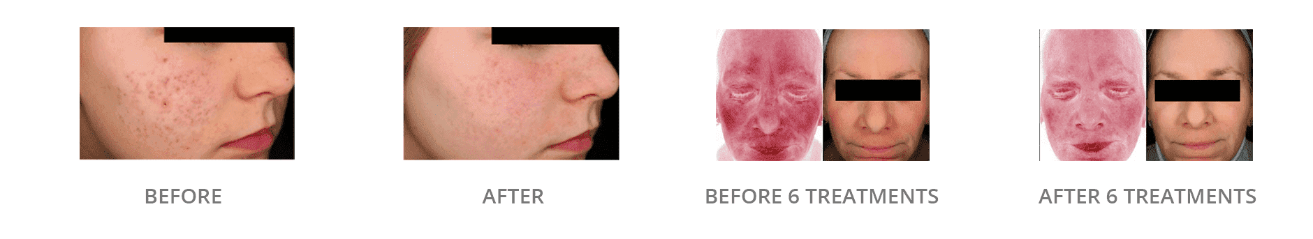 Laser Genesis Before And After Gallery Blaine Mn Associated Skin Care Specialists