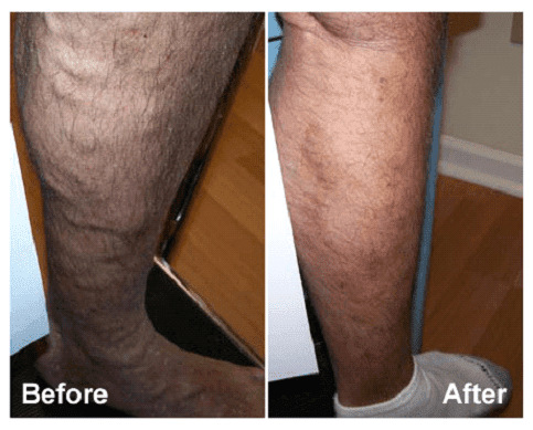 Varicose veins in men: before & after