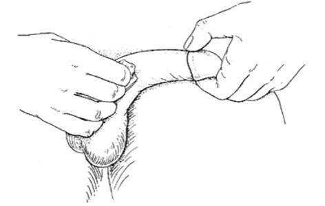 De la injectii in penis la supozitoare introduse in uretra