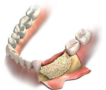 Guided Bone & Tissue Regeneration - Campbell, CA: Ueno Center Dental  Specialists
