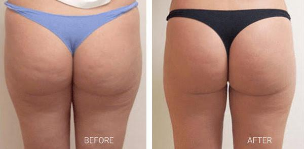 VelaShape III Buttocks Before and After