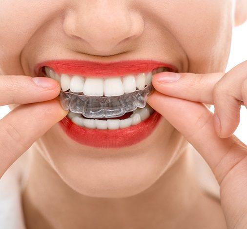 can invisalign fix protruding teeth,
