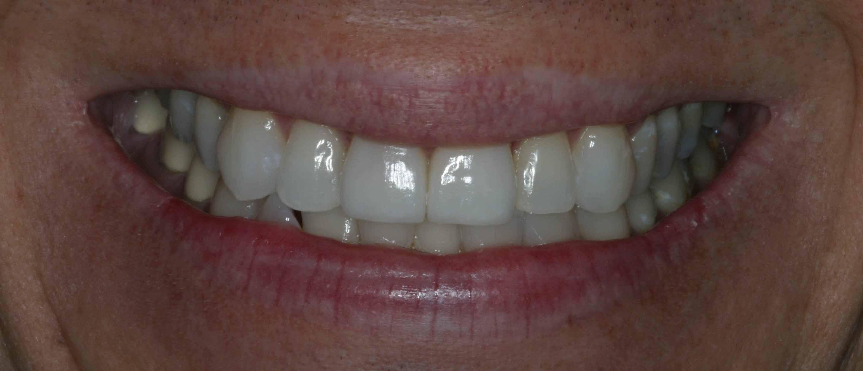 Two teeth redone with ceramic