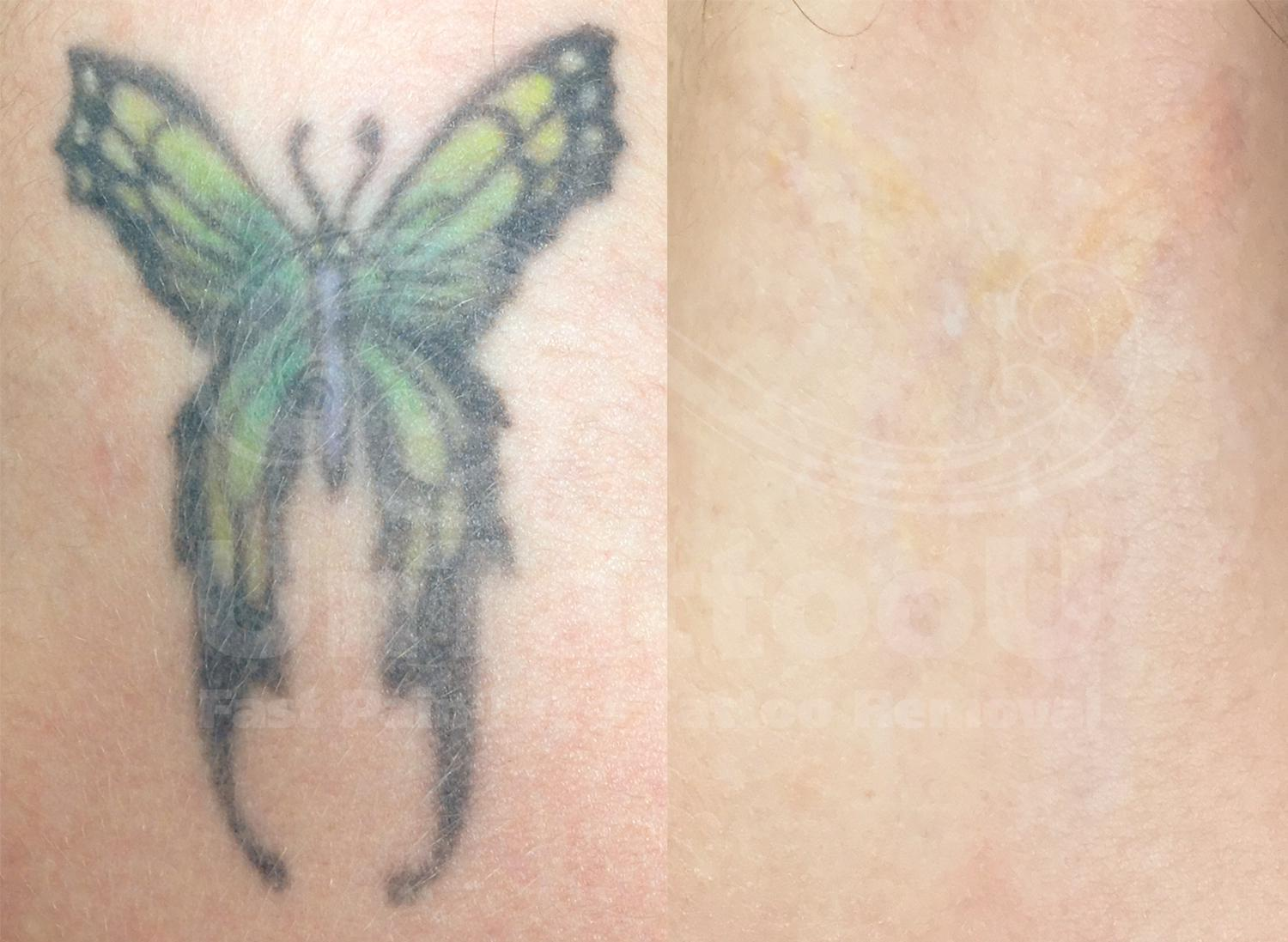 tattoo removal 3