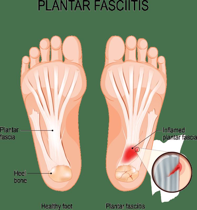 PlantaR Fasciitis diagram