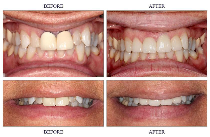 cosmetic dentistry astoria ny