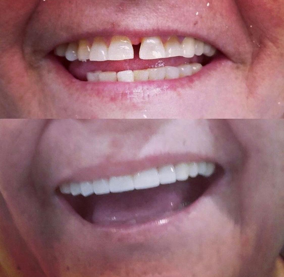 Dental veneers