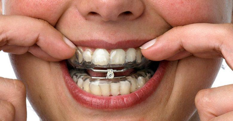 mandibular advancement splint