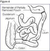 Vertical Banded Gastroplasty