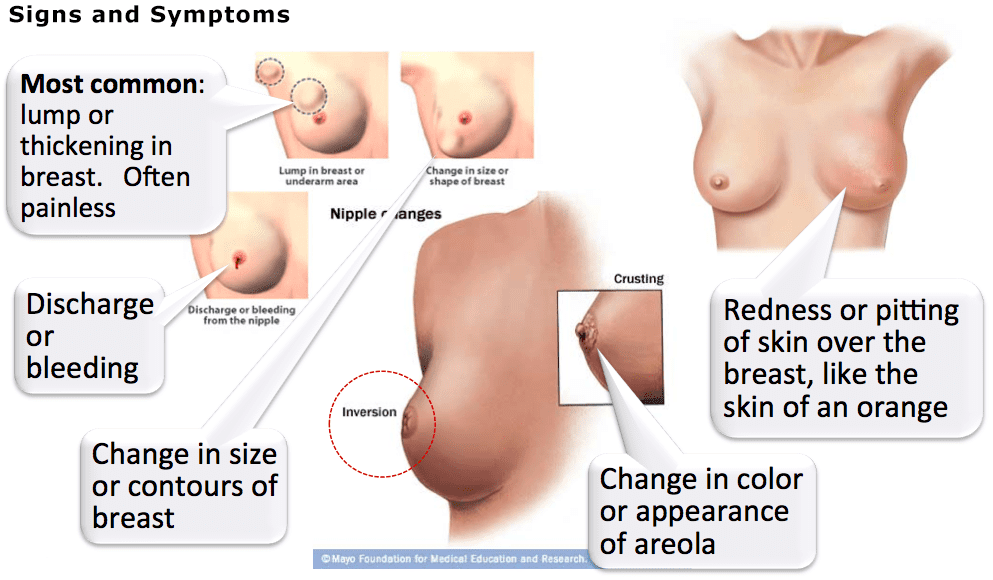 signs and symptoms breast illustration