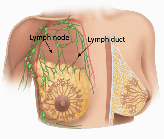 lymph breast image graphic