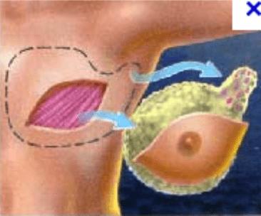 mastectomies