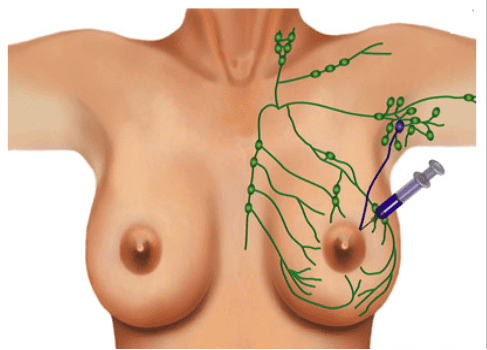 sentinel lymph node mapping and biopsy