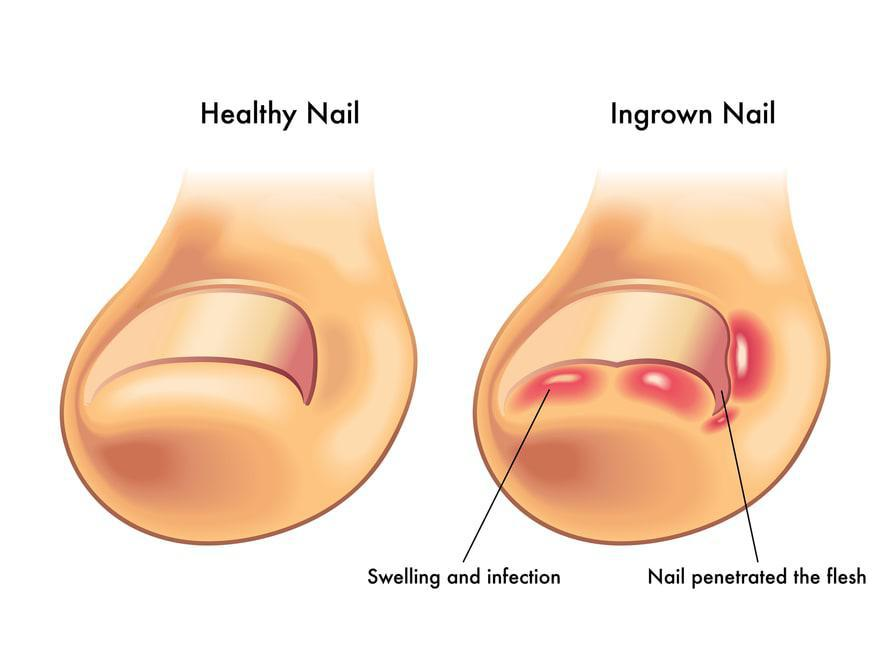 Healthy and Ingrown Toenails