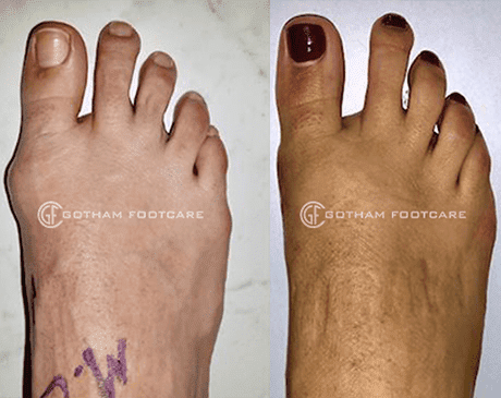 Bunion treatment by Gotham Footcare