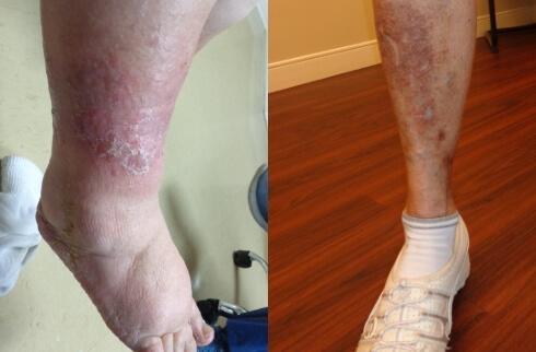 Skin Changes - College Park Orlando, FL & Kissimmee, FL ...