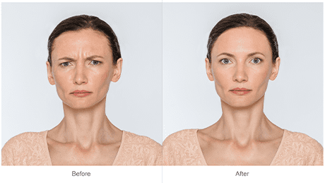 before/ after botox