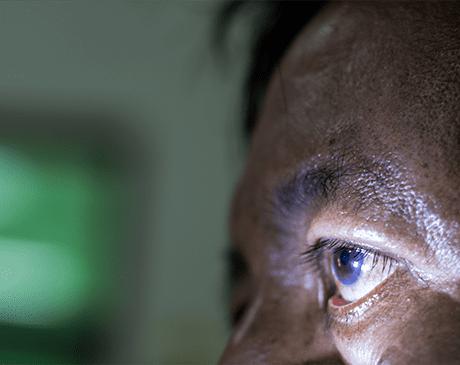 Man with Diabetic eyes