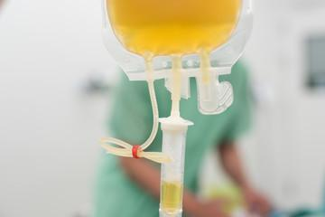 blood plasma IV