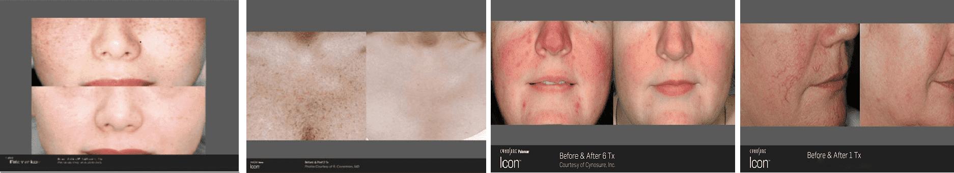 Cynosure Icon Laser Treatment Gallery El Segundo Ca Pure Luxe Medical