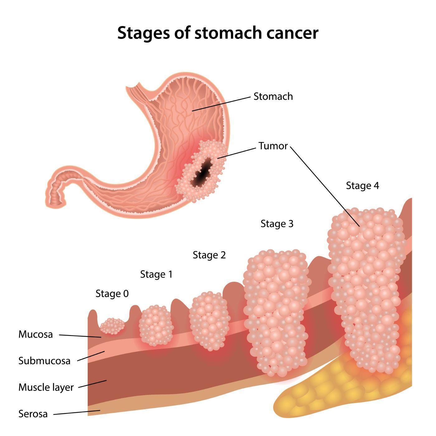 gastric cancer anatomy