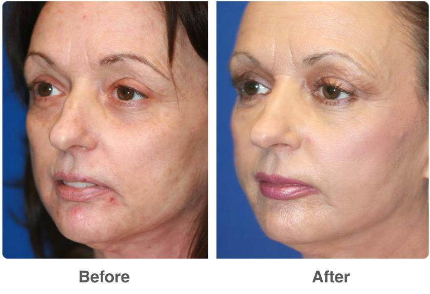 Laser facial before & after