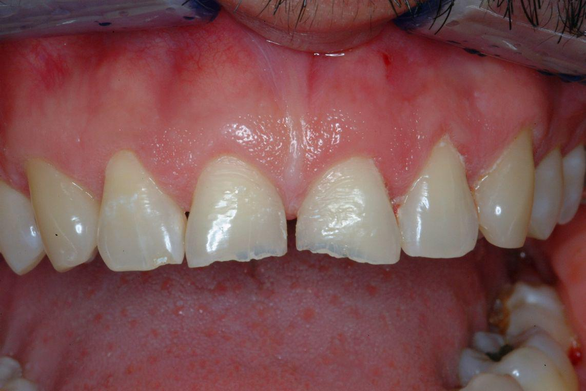 Anterior Composite Fillings