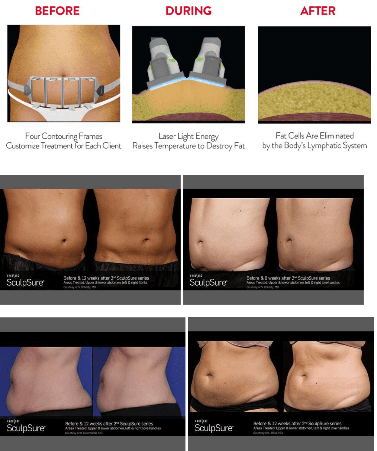 Sculpsure diagram