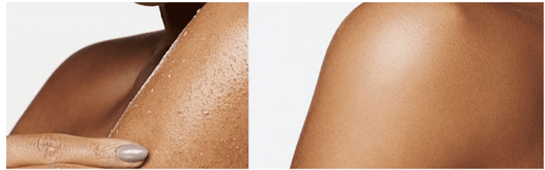 Before and After Body Peel