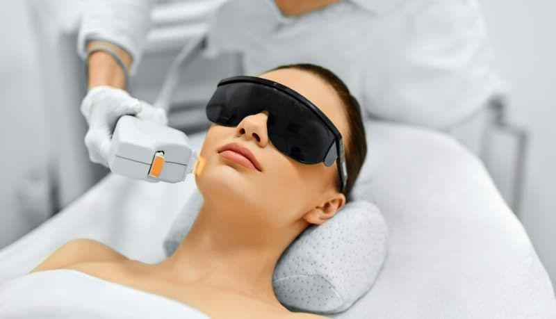 IPL Photofacial treatment