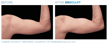 Before/After Arms