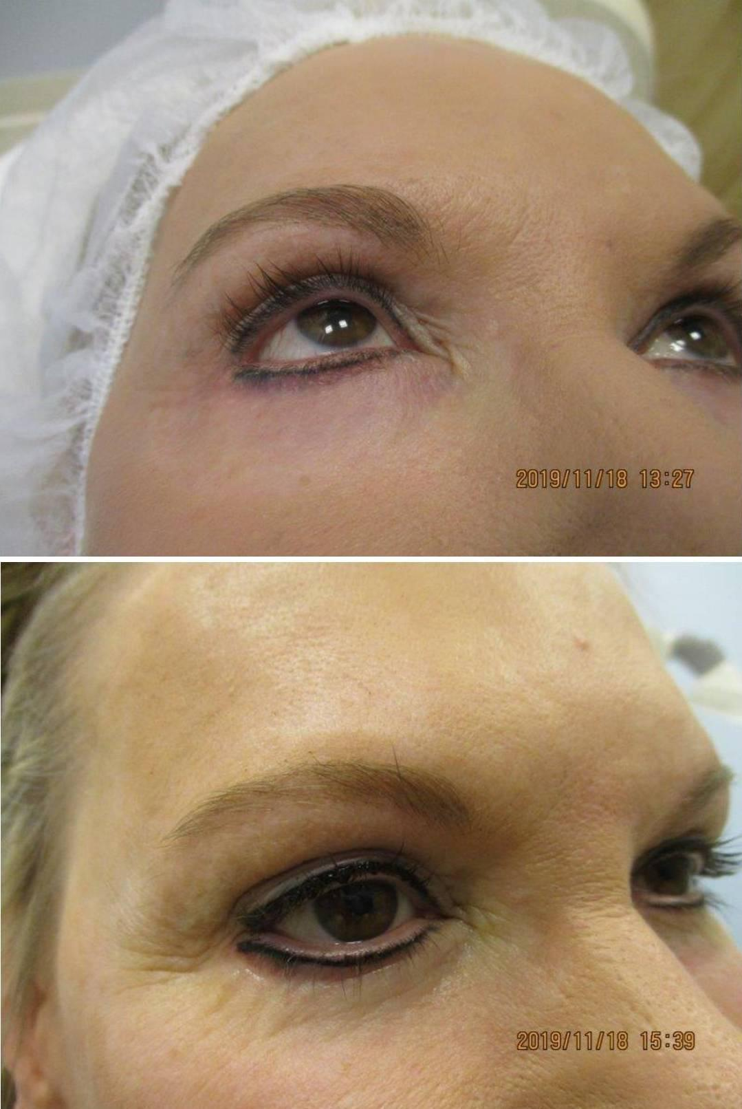 Perm Eyeliner before and after