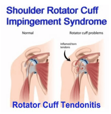 Stem Cell Regenerative Therapies for Rotator Cuff Tendonitis, also known as Impingement Syndrome