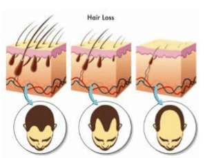 Male pattern baldness due to a progressive miniaturization of the follicle   Treat with Stem Cell PRP hair restoration  Simply men's Health RejuvaHair Non-surgical hair restoration palm beach, boca raton, miami