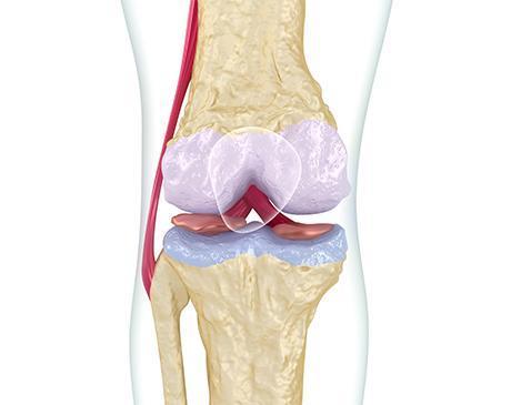 Bone joint pain