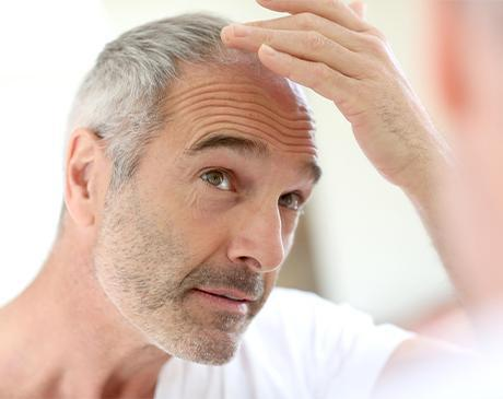 Simply Men's Health non-surgical stem cell PRP hair restoration program