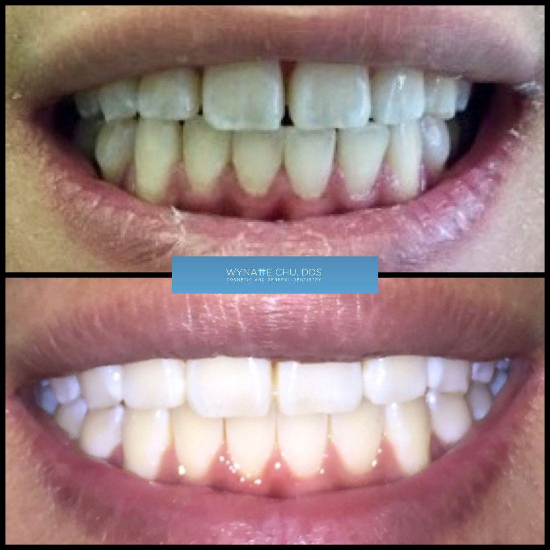 invisalign before and after